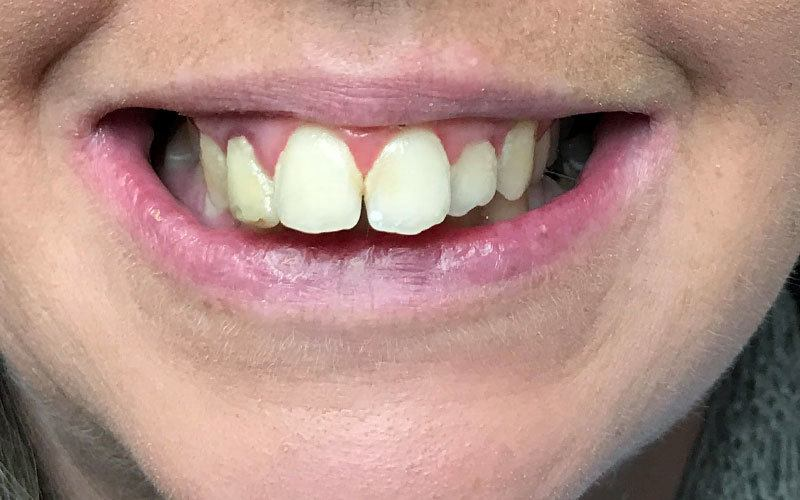 Six Month Smile Before and After